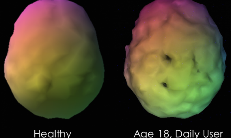 This shows a sample case of a visual 3-D rendering of a baseline SPECT scan  of a long standing marijuana user compared to a control subject.